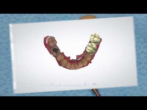 Molar Dental Implants 617-261-6440