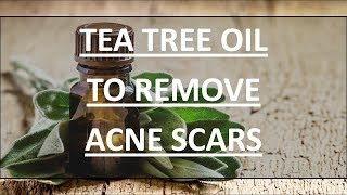 Acne Scar Removal-3 DIY Tips to Remove Acne Scars with Tea Tree Oil