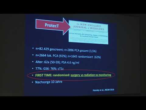 Low risk prostate cancer, what is the right choice for me
