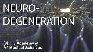 Neurodegeneration: from molecules to medicines   Professor Giovanna Mallucci