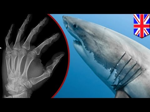 จากปลาสู่มนุษย์ แขนขามนุษย์พัฒนามาจากเหงือกปลาหรือไม่