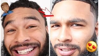 I SPENT A $1000 TO LOOK LESS UGLY | GLOW UP CHALLENGE..