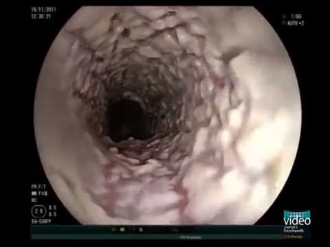 esophageal candidiasis youtube