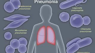 Treating Community-Acquired Pneumonia