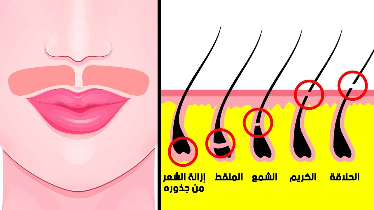 ٩ طرق للتخلص من شعر الوجه طبيعيًّا