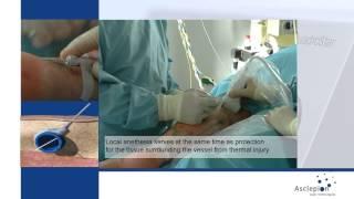 Эндоваскулярная лазерная терапия варикозного расширения вен на QuadroStarPRO 940нм от Asclepion(, 2015-06-29T05:32:06.000Z)