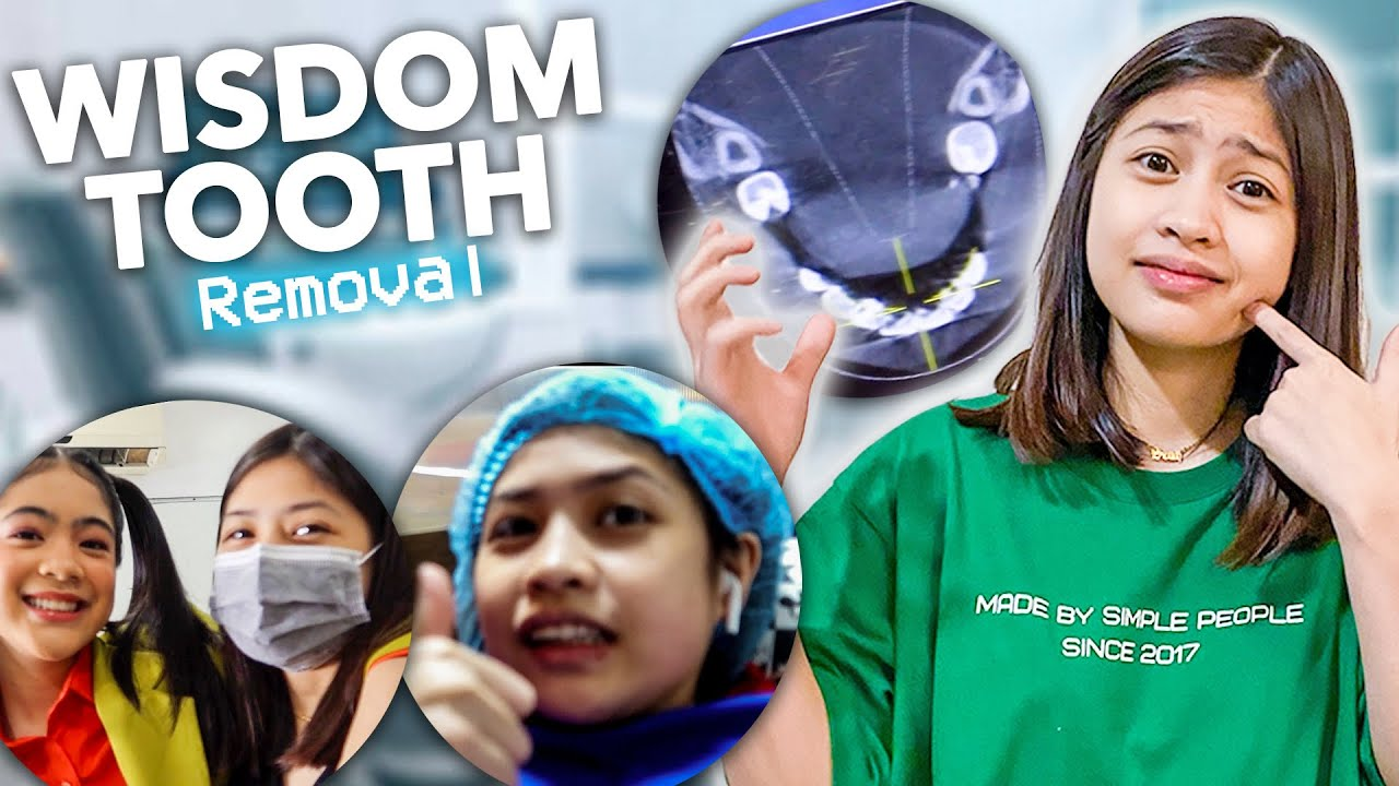 Wisdom Tooth Removal ( hindi naman pala masakit hahaha) | Chelseah Hilary