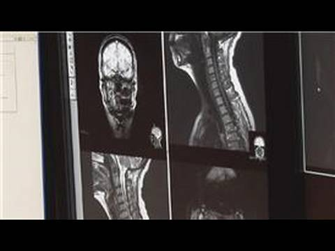 Radiology : What Is Computed Radiography?