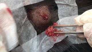 微創巨型頭皮粉瘤切除 美麗新城診所莊禮謙醫師 Huge Epidermal Cyst on Scalp, Cyst Removal, Dr George
