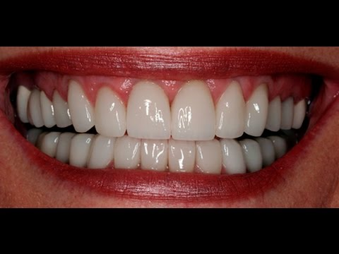 Dentist Stevens Point Dental Health Center Before & After Photos (actual patients)