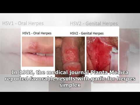4 Powerful Herbal Remedies To Cure A Genital Herpes Outbreak (recipes included)
