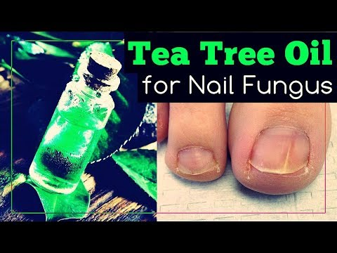 Tea Tree Oil for Nail Fungus: How to Use It?