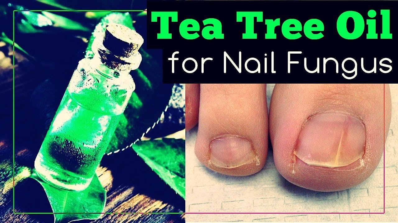 Tea Tree Oil for Nail Fungus: How to Use It? - YouTube