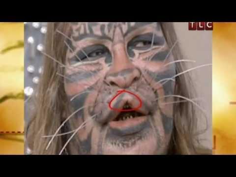 Жертвы пластической хирургии: Человек-Кот