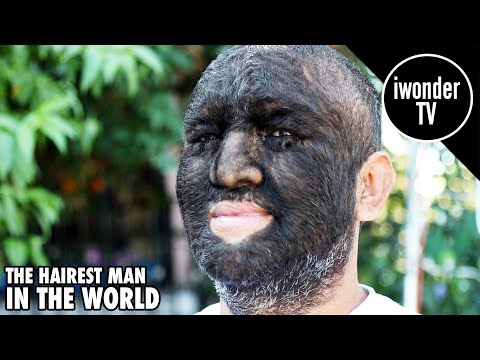The Wolf Boy - The Hairiest Man In The World