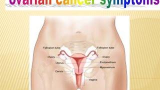 Ovarian Cancer Symptoms Stories