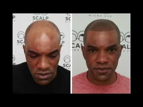 Scalp micropigmentation new york hairline scalp micro for Head tattoo hairline