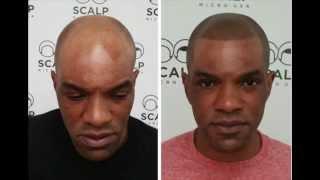 Scalp Micropigmentation New York- Hairline | Scalp Micro USA