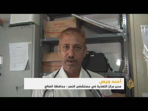 تزايد حالات الفقر وسوء التغذية بين أطفال اليمن  - نشر قبل 2 ساعة