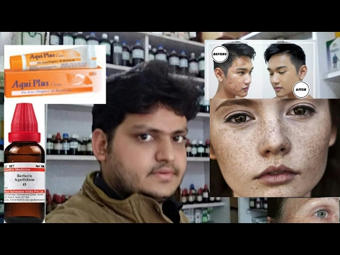 hqdefault - Treatment Of Acne Scars In Homeopathy