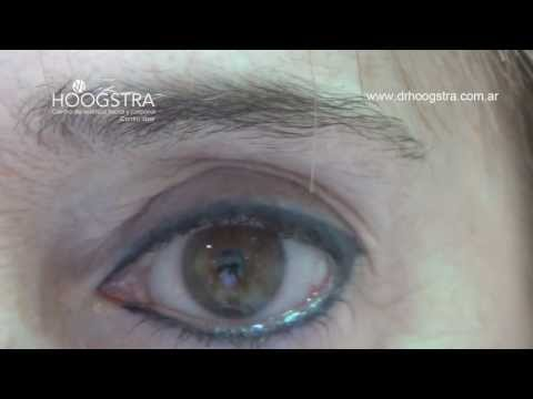 Rejuvenecimiento Facial con Láser de Co2 (13003)