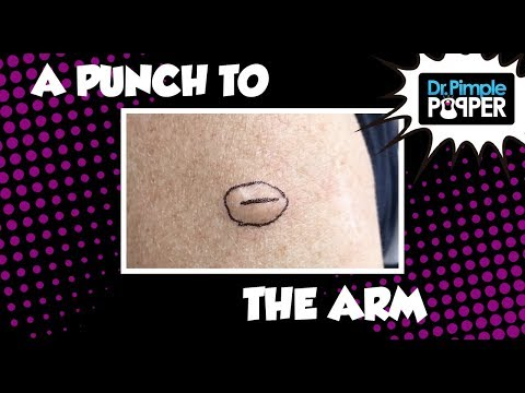 Recurrent Cyst: Punch to the Arm