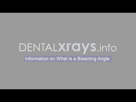 Dental X-Rays – Information on What is a Bisecting Angle?