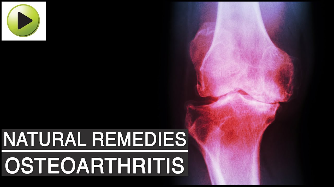 Natural Remedies for Osteoarthritis Knee Pain
