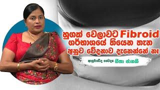 හුගක් වෙලාවට fibroid ගර්භාශයේ තියෙන තැන අනුව වේදනාව දැනෙන්නේ නෑ| Piyum Vila |13 -08-2019 |Siyatha TV Thumbnail