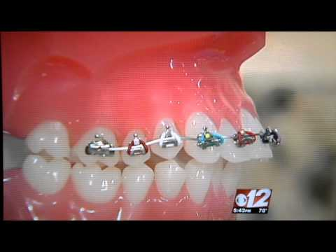 Fastbraces - Orthodontics - Straight Teeth In Palm Beach Gardens, FL