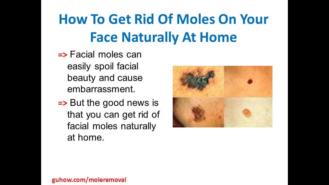 How To Get Rid Moles Naturally