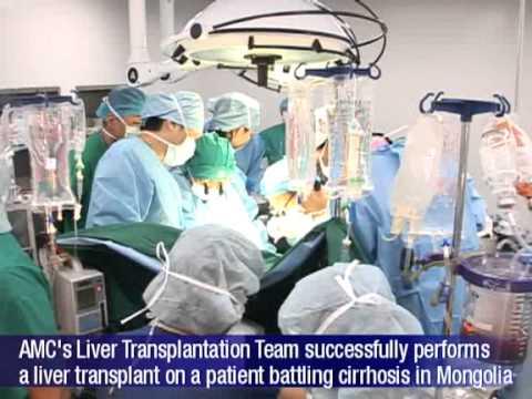 AMC Int'l News - Medical technology transfer to Mongolia for liver transplantation