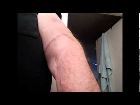 Arm Bruised From Blood Presure Cuff Youtube