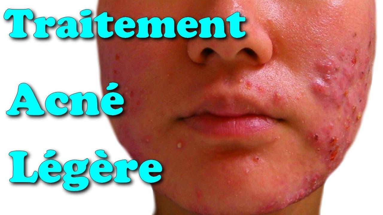 traitement acné legere