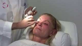 Treatment videos 182 html Mp3