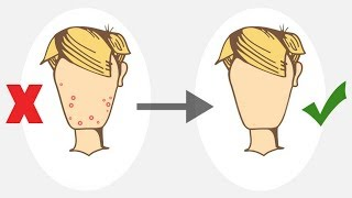 How to Get Rid of Pimples For Teenagers (NO PRODUCTS)