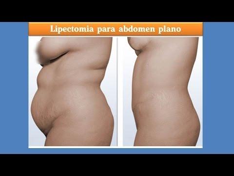 Videos de lipectomia abdominal antes y despues de adelgazar