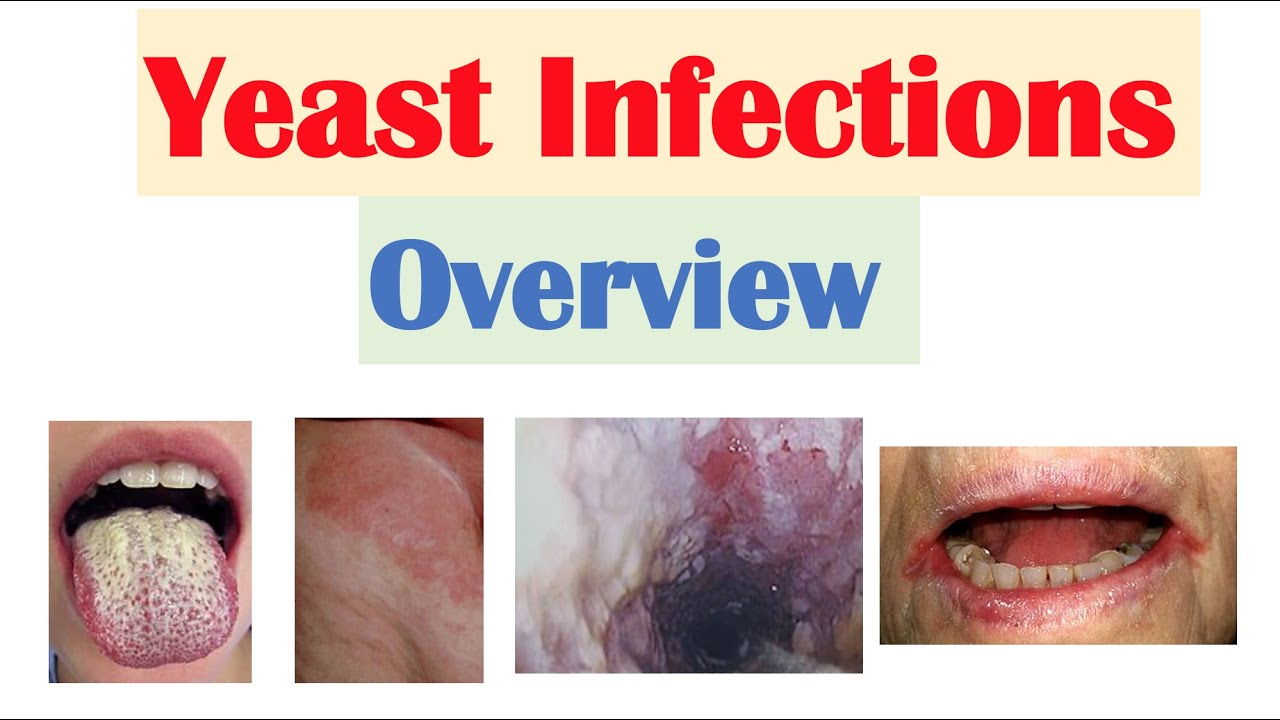 Download Candidal (Yeast) Infections Overview   Oral Thrush, Vaginal, Intertrigo, Esophageal Candidiasis