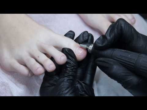Постановка BS пластины/коррекция вросшего ногтя, тампонада/Bs brace application