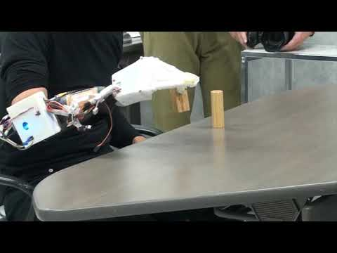 Study participant tests 3D printed prosthetic hand