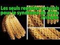 Les seuls remèdes naturels pour le syndrome du côlon irritable - conseils