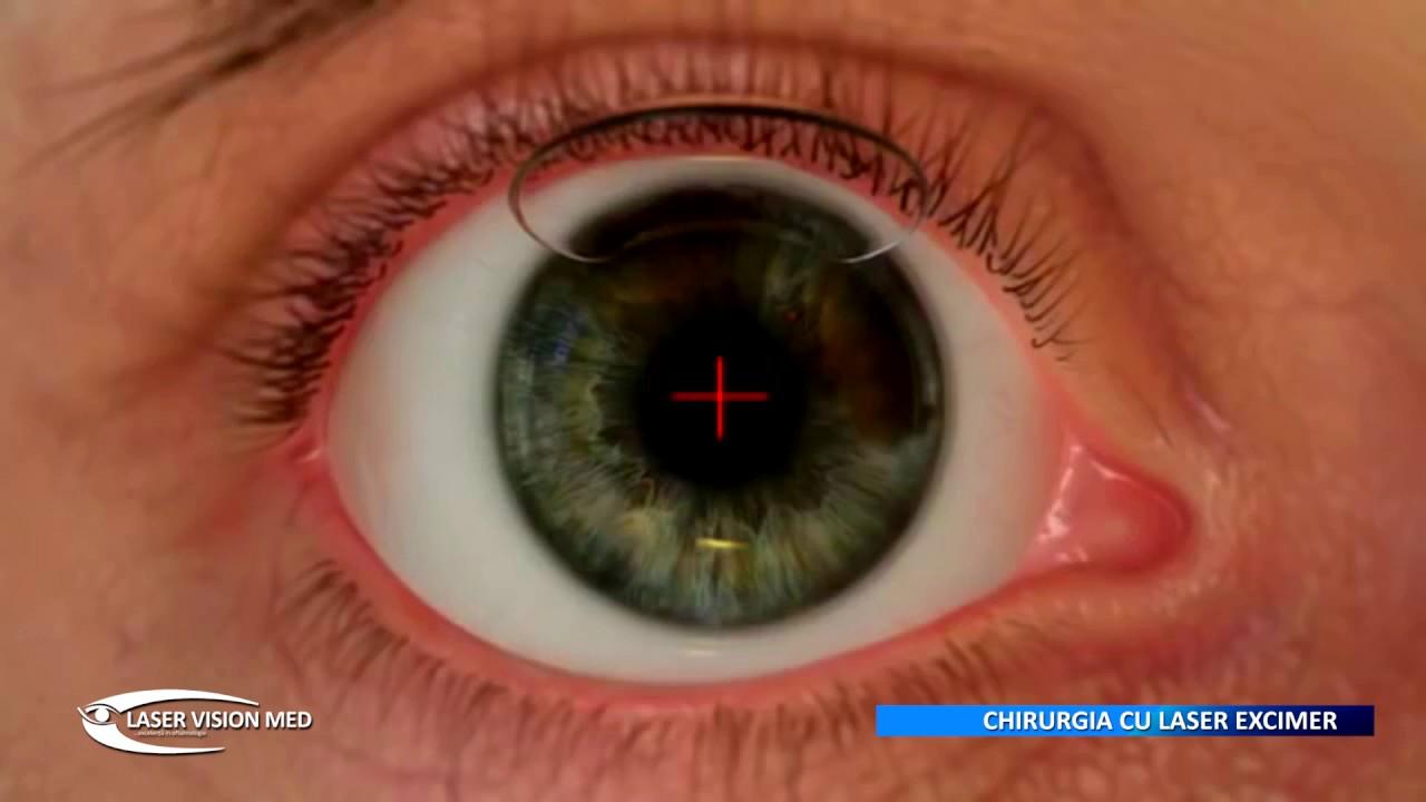 chirurgie de îmbunătățire a vederii cu laser