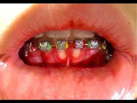 จัดฟันเหงือกร่น