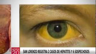 SAN LORENZO REGISTRA 2 CASOS DE HEPATITIS Y 6 SOSPECHOSOS