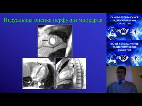 Ишемическая болезнь сердца. Кардиология