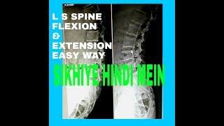 L S SPINE  FLEXION AND EXTENSION, PART - 119