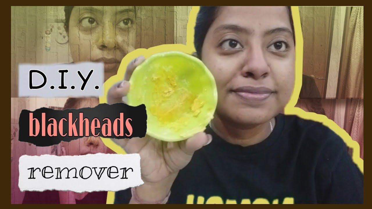D.I.Y. Blackhead Remover | Home Remedy | Samriddhi Ganguly |