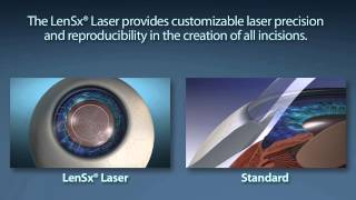 LENSX® LASER:  THE COMPLETE ANTERIOR SEGMENT CATARACT SURGICAL EXPERIENCE