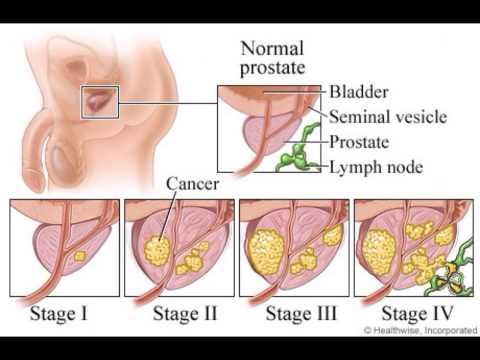 ជំងឺ ក្រពេញ Prostate news health, cambodia news