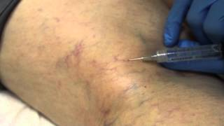 Vein Therapy at W. MD Weight Loss & Aesthetics